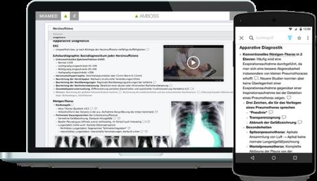 amboss-auf-laptop-und-tablet
