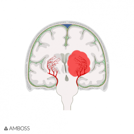 Learning about strokes for NBME Neurology Shelf Exam